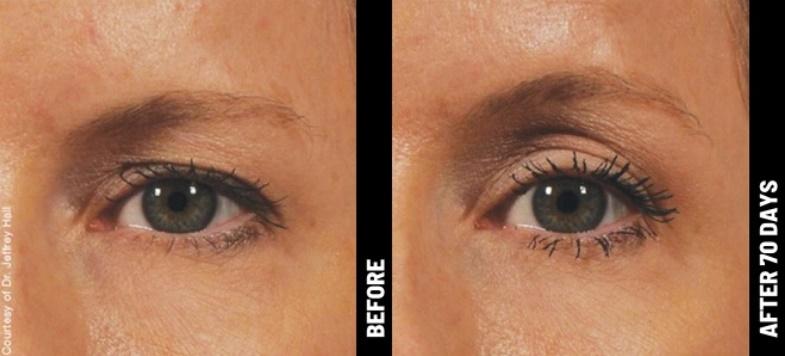 Ulthera ogen